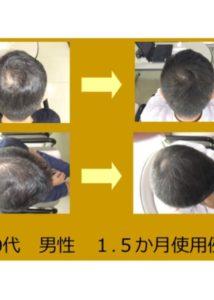 最先端発毛システム『ヘキサジーファクター』 ¥16,500⇒¥11,000